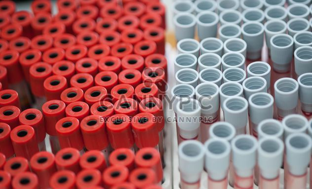 Tubes of blood in plastic rack - Free image #347245