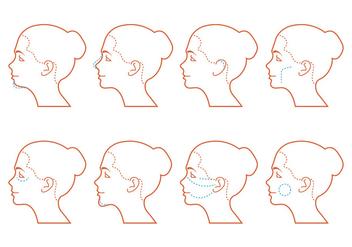 Face Surgery - бесплатный vector #378895