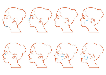 Face Surgery - vector gratuit #378895
